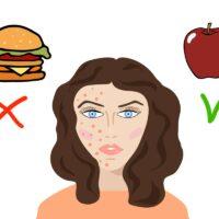 Acné et alimentation : les conseils à appliquer